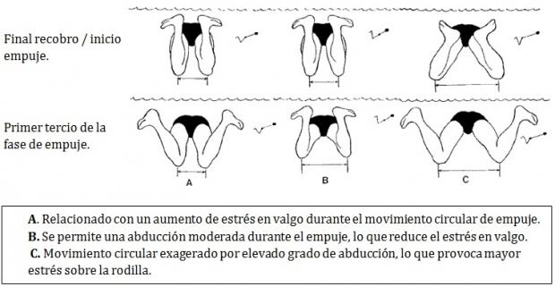 El cargador para la osteocondrosis en la espátula