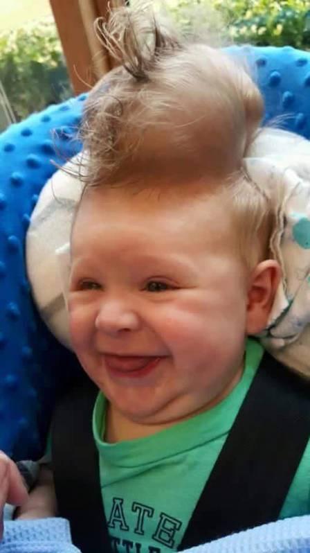 un bebe nace con el cerebro fuera