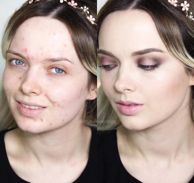 Bloguera que oculta su acné con maquillaje