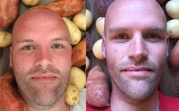 Pierde 50 kilos comiendo solo patatas