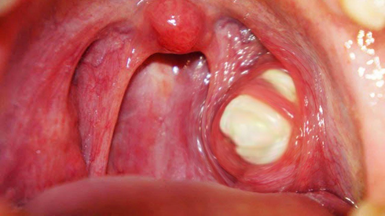 Piedras blancas de suciedad que se forman en la boca