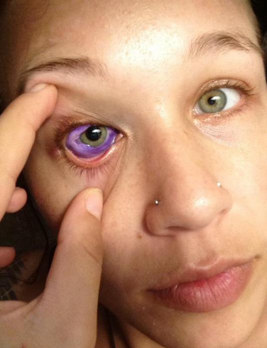 Modelo se tatua el ojo