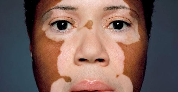 Personas con vitiligo