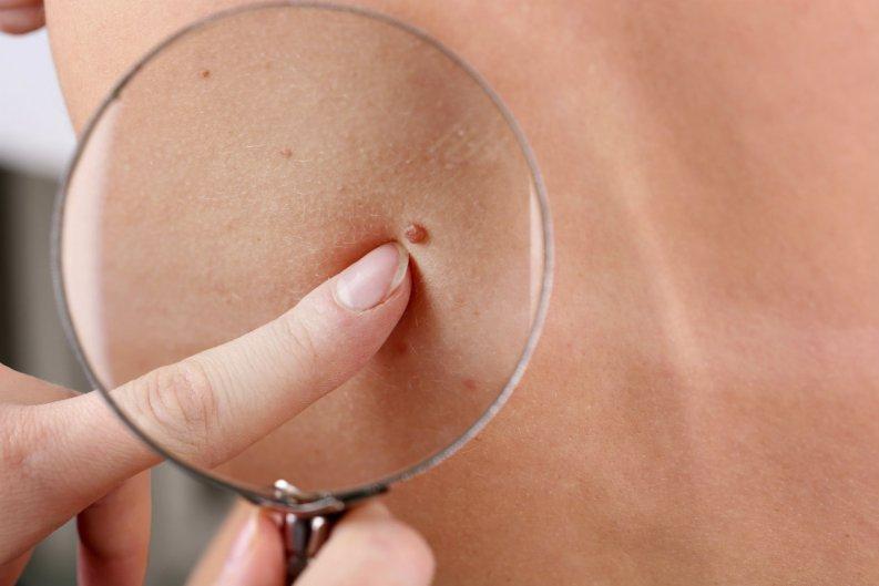 ¿Qué son los lunares rojos en la piel y a qué se deben?