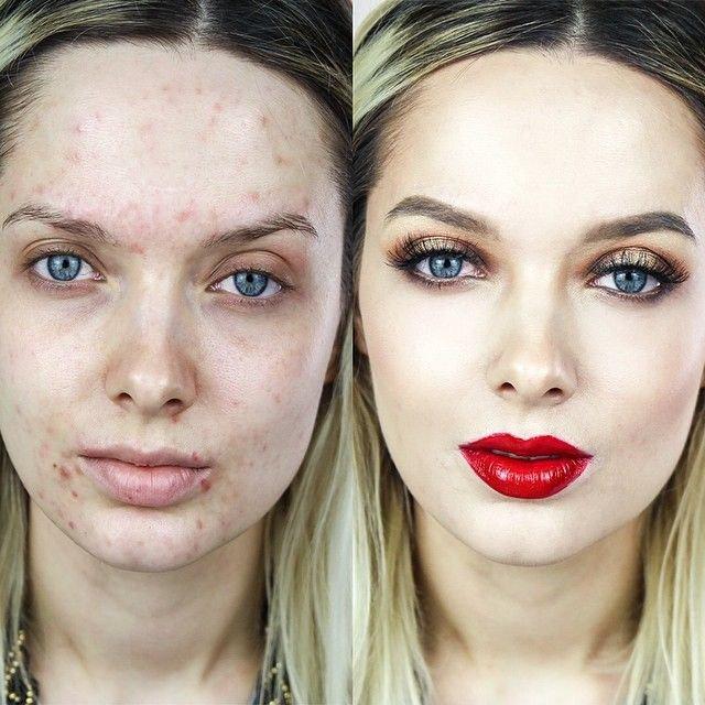 trucos para el acne