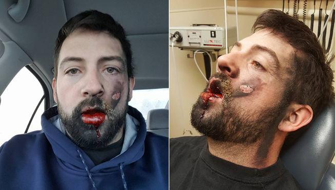 Así quedó este hombre al explotarle en la cara un cigarrillo electrónico