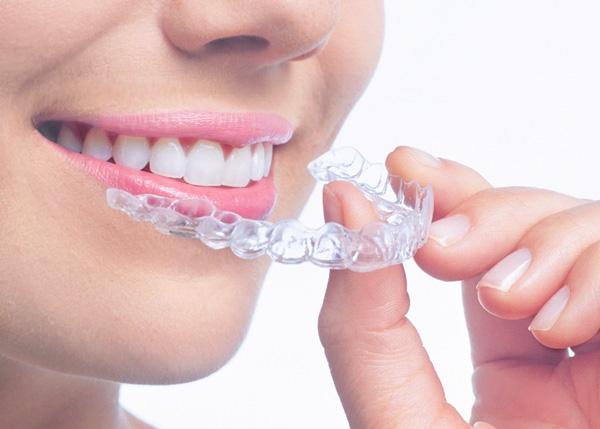 ¿Qué tipos de ortodoncia hay?