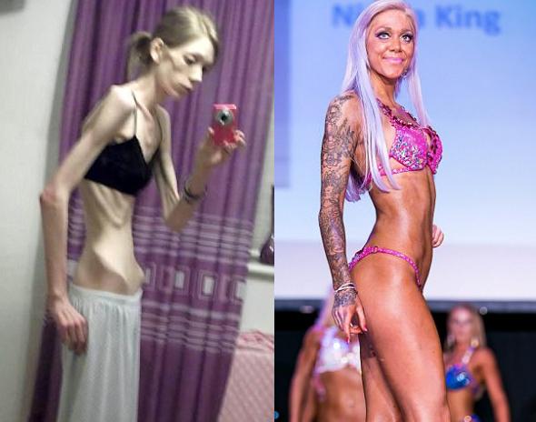 De estar a punto de morir de anorexia a ser campeona de culturismo