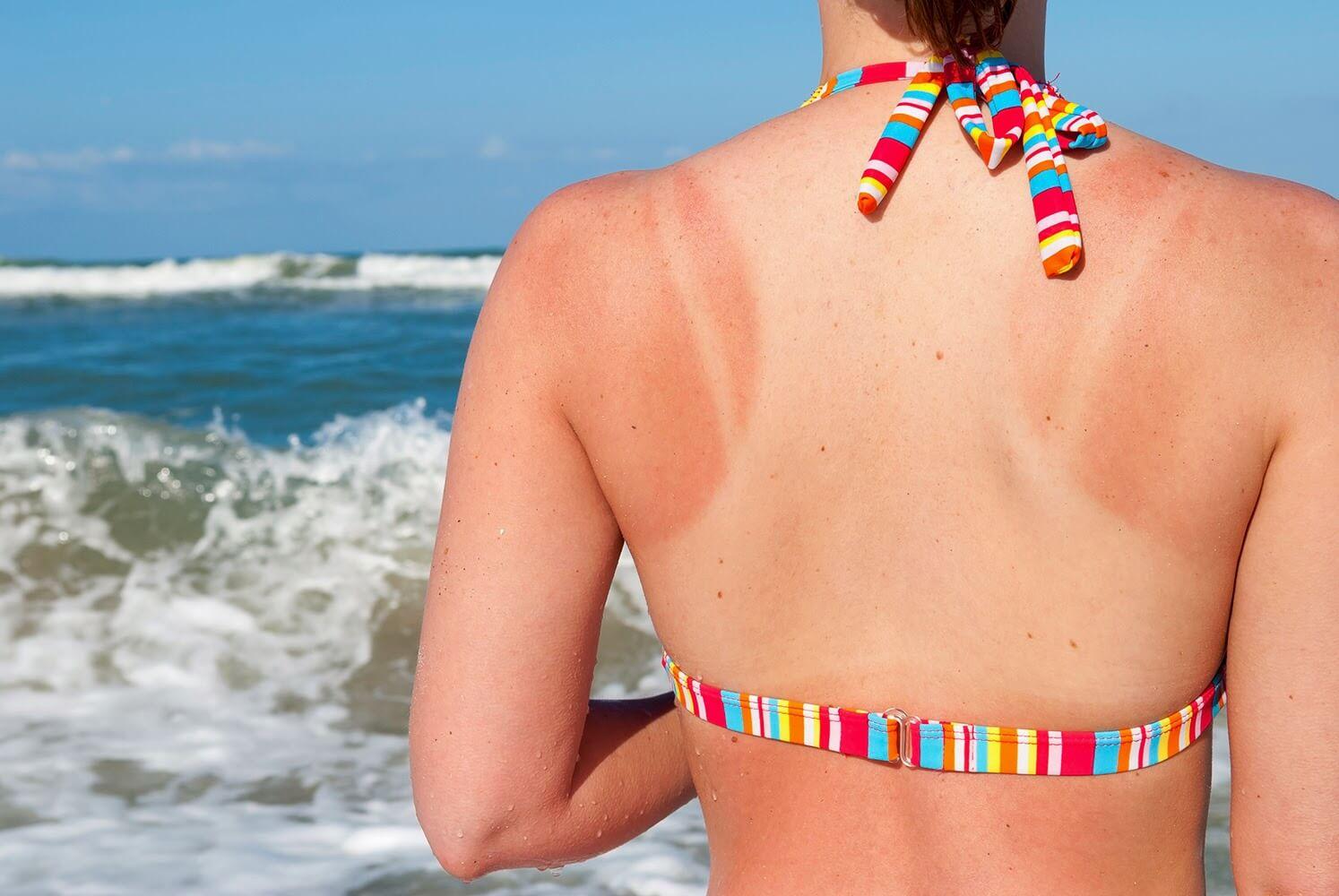 Los 3 trucos definitivos para aliviar las quemaduras del sol