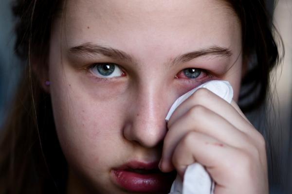 curar conjuntivitis