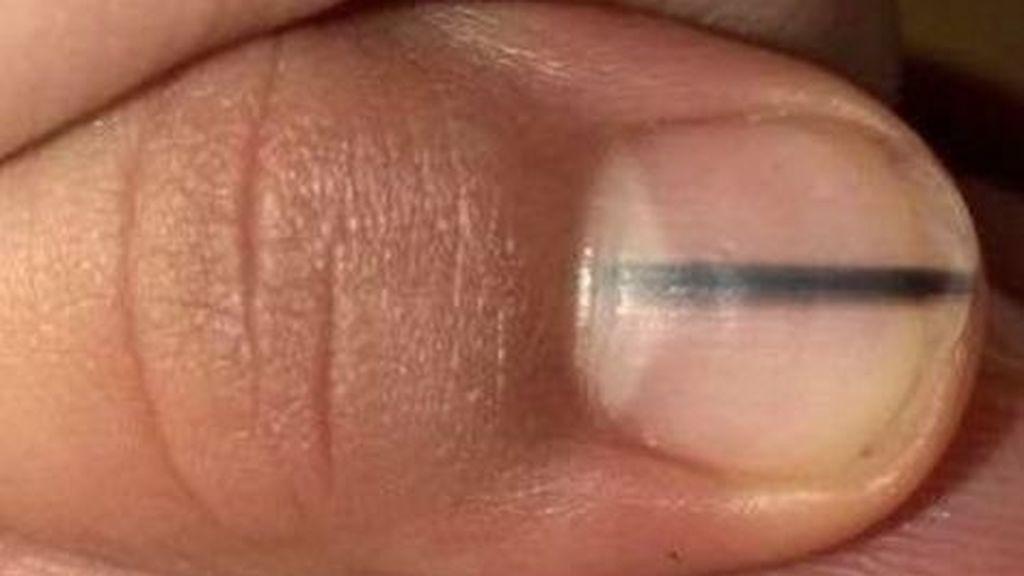 Una esteticista diagnostica un melanoma mientras hace la manicura