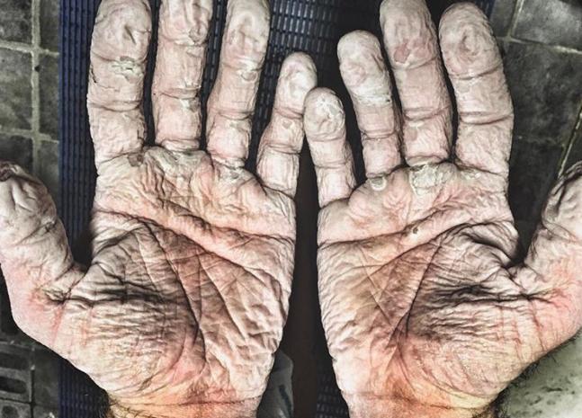 Este es el aspecto de las manos de un regatista después de mes y medio remando