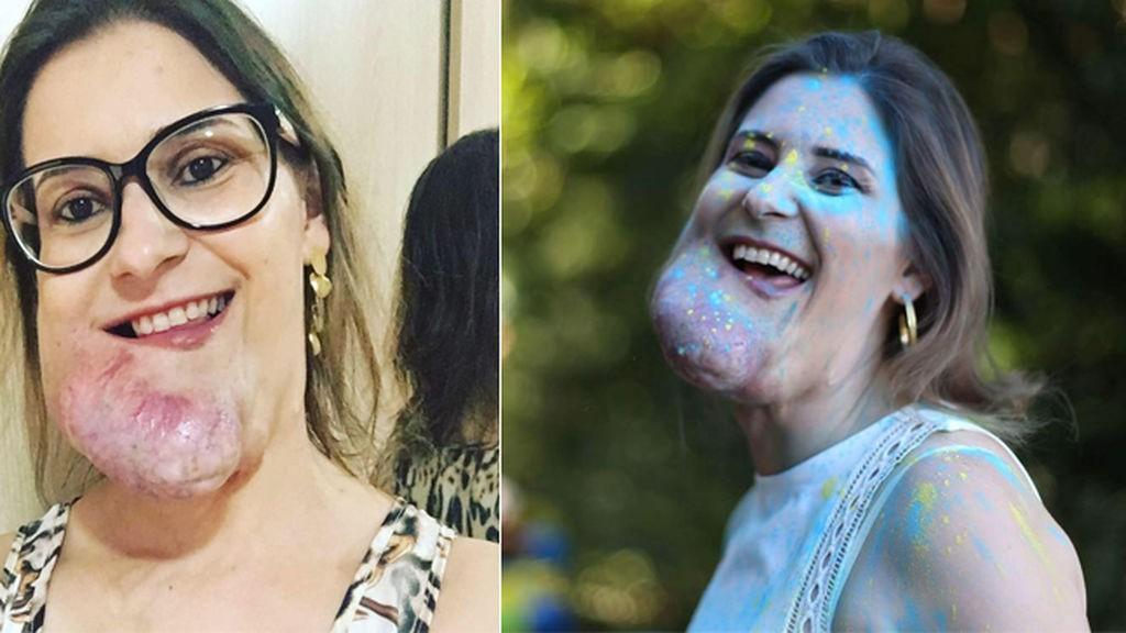 mujer con tumor en el rostro