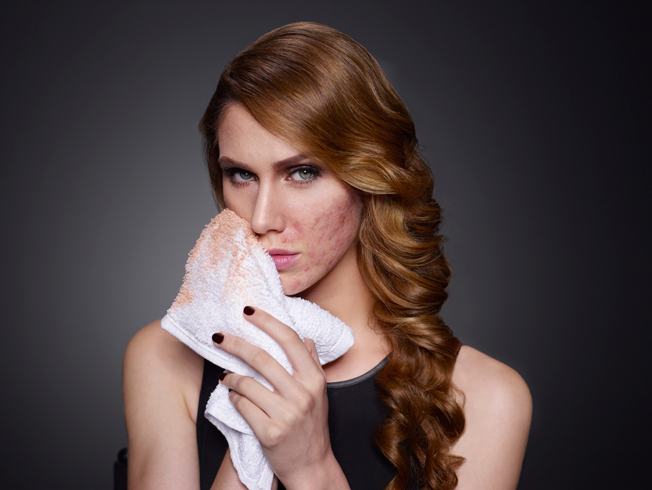 ¿Cómo tratar una piel con acné?
