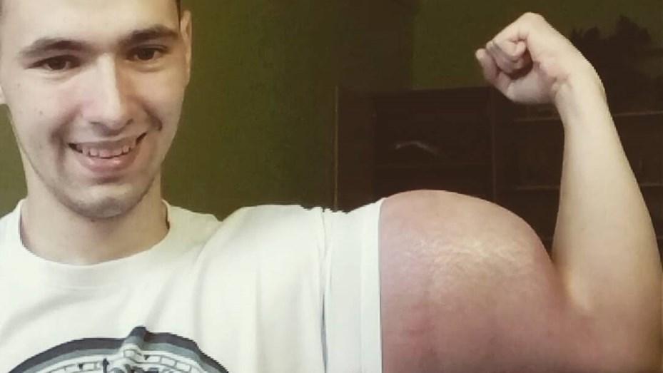 """""""El Popeye ruso"""": se inyecta """"litros de aceite"""" para aumentar sus bíceps"""