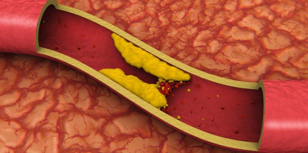 sintomas de colesterol alto