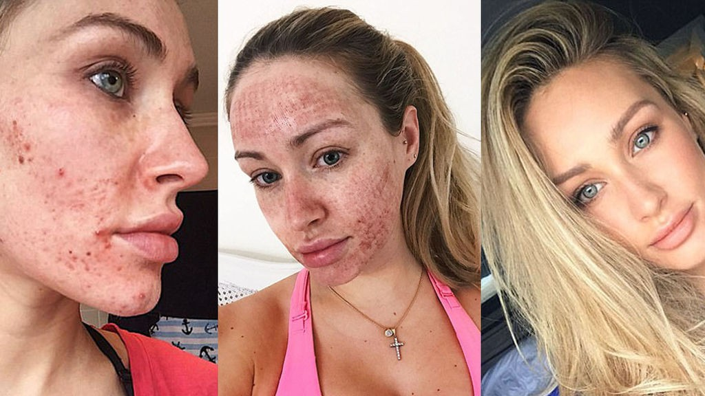 Una joven muestra asombroso resultado de un tratamiento láser contra el acné